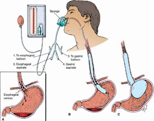 điều trị xuất huyết tiêu hóa nội khoa