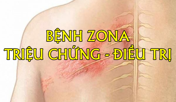 Bệnh zona, Triệu chứng và điều trị