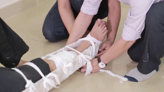 Sơ cứu gãy xương
