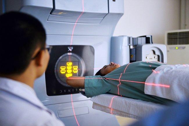 Phương pháp điều trị ung thư phổi bằng xạ trị