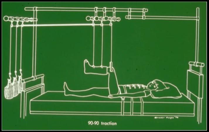 Điều trị gãy xương bằng phương pháp xuyên đinh kéo liên tục