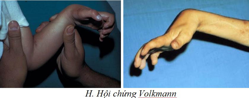 Hội chứng Volkmann